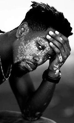 vitiligo vipoc